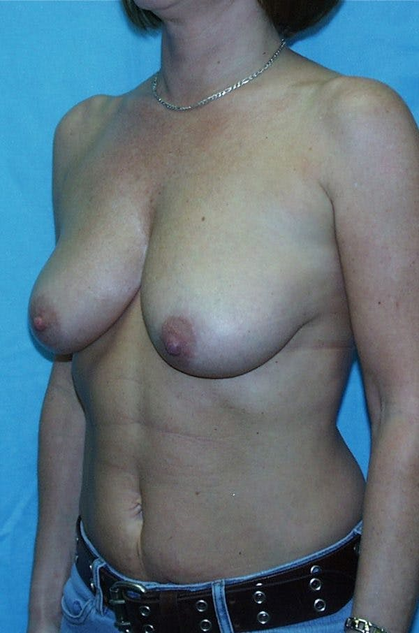 Mastopexy Gallery - Patient 23533717 - Image 3