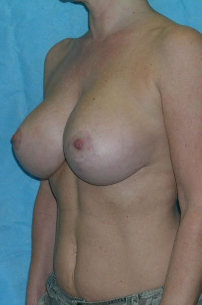 Mastopexy Gallery - Patient 23533717 - Image 4