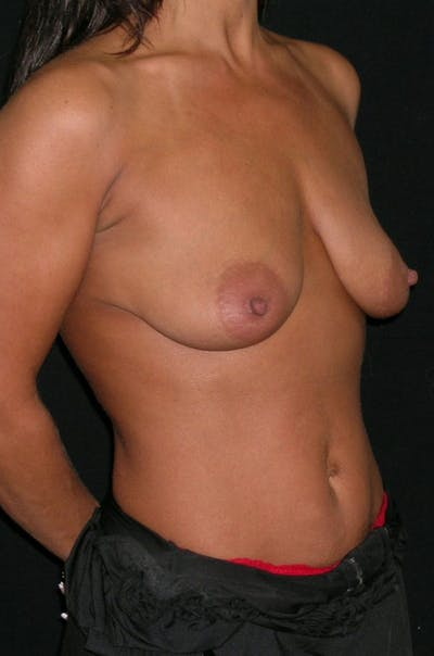 Mastopexy Gallery - Patient 23533750 - Image 1