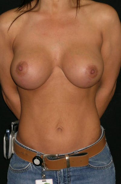 Mastopexy Gallery - Patient 23533750 - Image 6