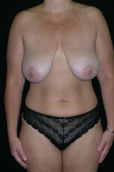 Mastopexy Gallery - Patient 23533752 - Image 1