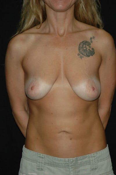 Mastopexy Gallery - Patient 23533754 - Image 1