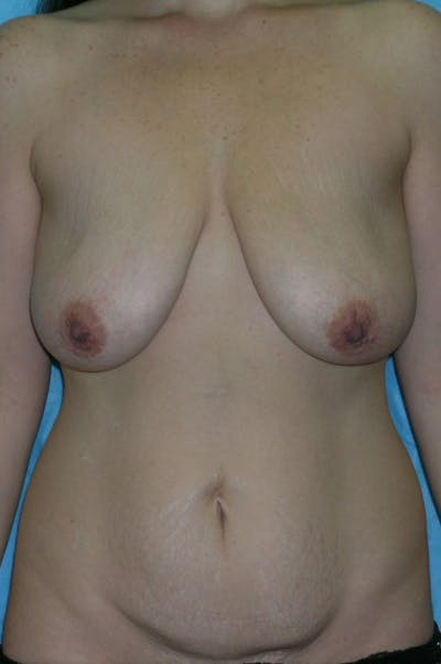 Mastopexy Gallery - Patient 23533775 - Image 1