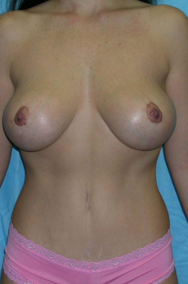 Mastopexy Gallery - Patient 23533775 - Image 2