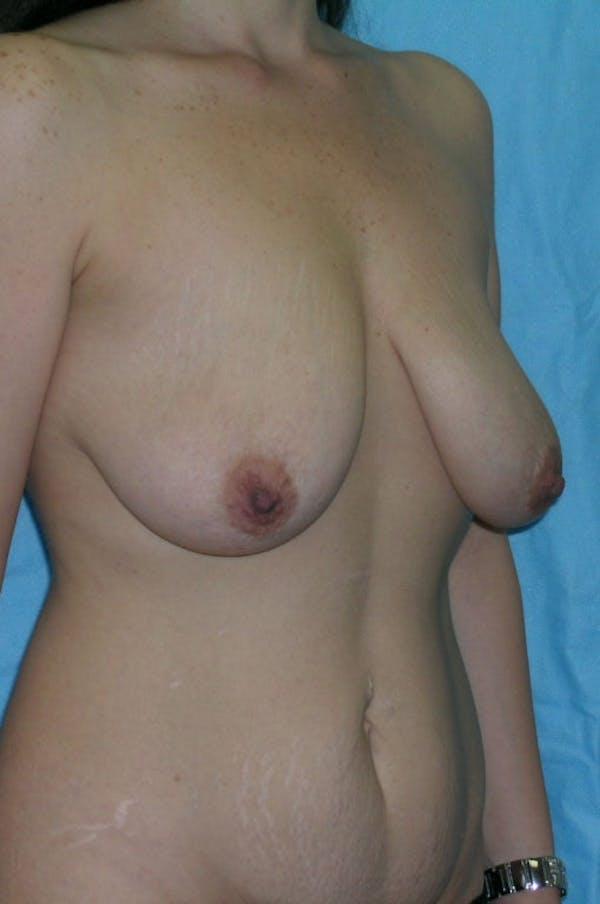 Mastopexy Gallery - Patient 23533775 - Image 3
