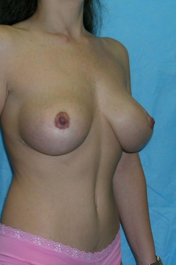 Mastopexy Gallery - Patient 23533775 - Image 4