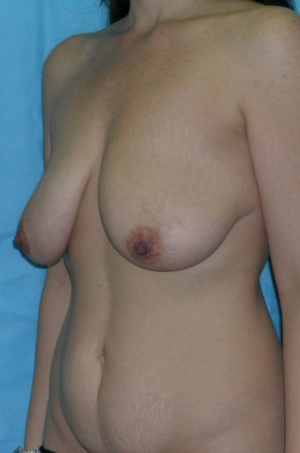 Mastopexy Gallery - Patient 23533775 - Image 5