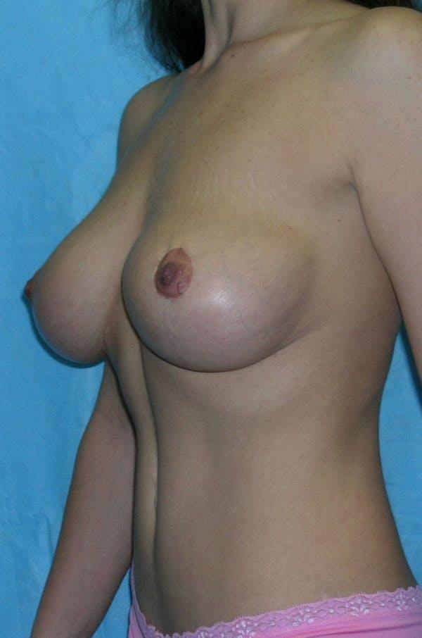 Mastopexy Gallery - Patient 23533775 - Image 6