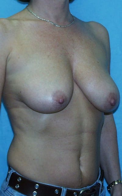Mastopexy Gallery - Patient 23533776 - Image 1