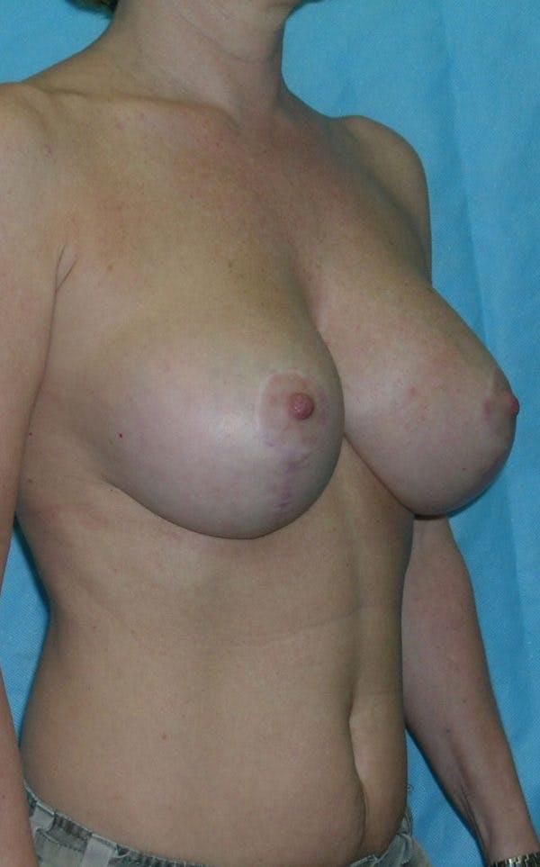 Mastopexy Gallery - Patient 23533776 - Image 2