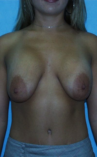Mastopexy Gallery - Patient 23533781 - Image 1