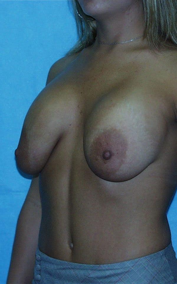 Mastopexy Gallery - Patient 23533781 - Image 5