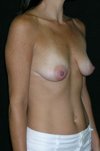 Mastopexy Gallery - Patient 23533785 - Image 1