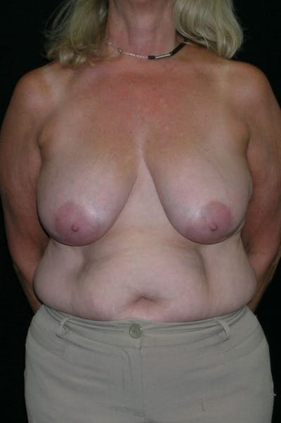 Mastopexy Gallery - Patient 23533791 - Image 1