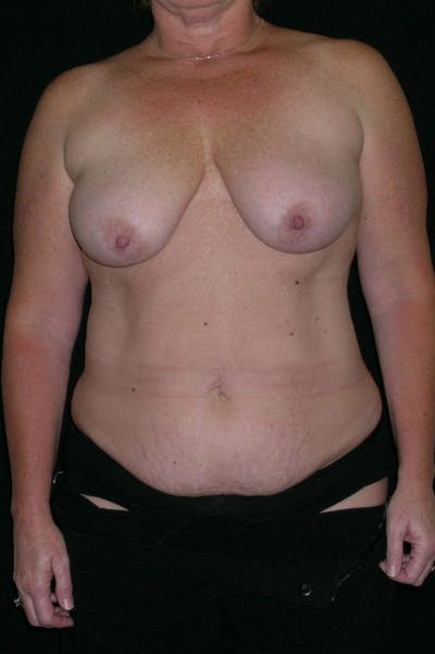 Mastopexy Gallery - Patient 23533798 - Image 1