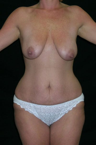 Mastopexy Gallery - Patient 23533800 - Image 1