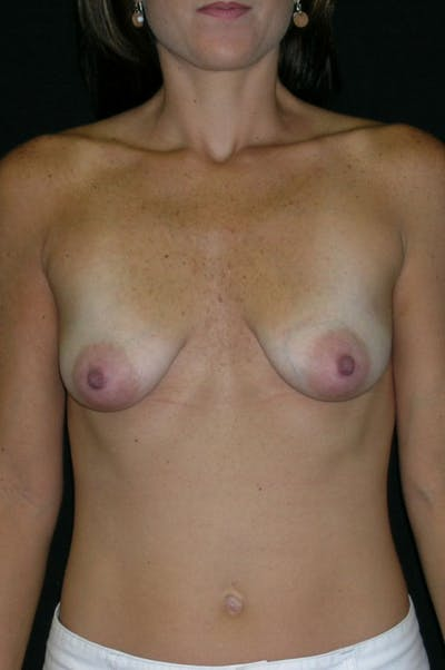 Mastopexy Gallery - Patient 23533801 - Image 1