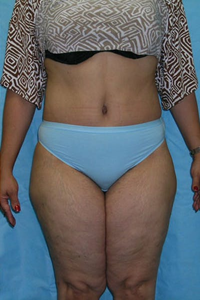 Tummy Tuck Gallery - Patient 23533813 - Image 2