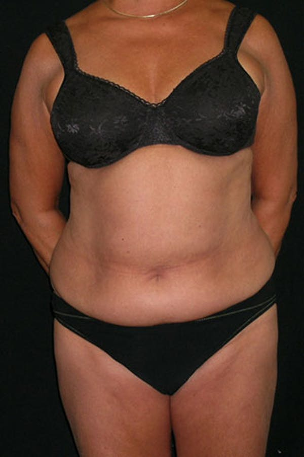 Tummy Tuck Gallery - Patient 23533814 - Image 1