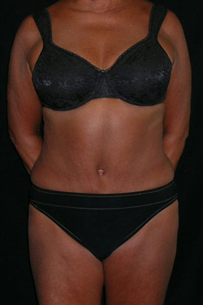 Tummy Tuck Gallery - Patient 23533814 - Image 2