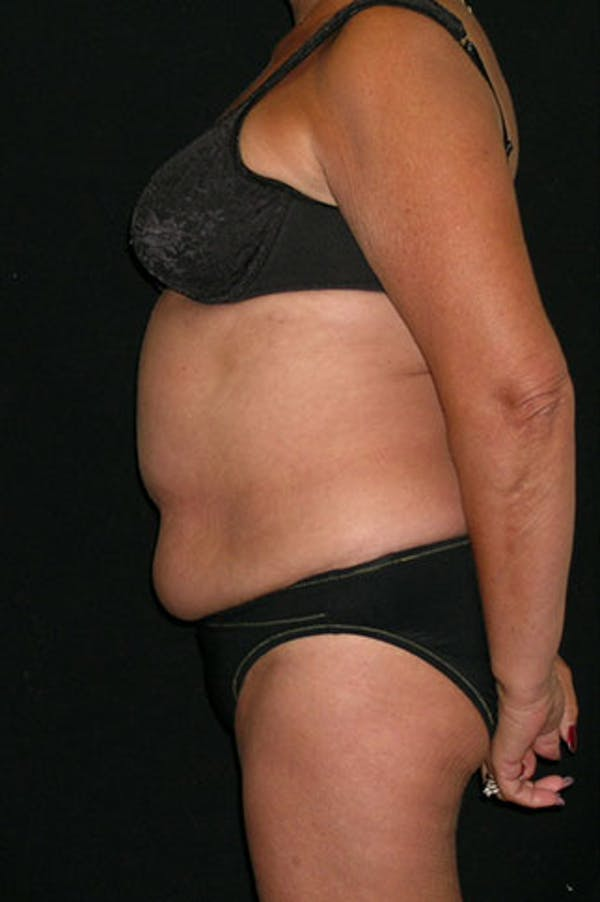 Tummy Tuck Gallery - Patient 23533814 - Image 5