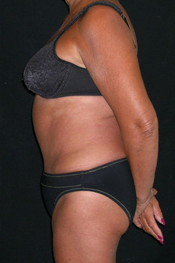 Tummy Tuck Gallery - Patient 23533814 - Image 6