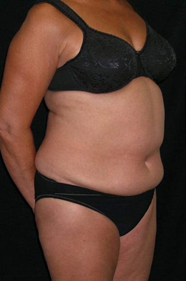 Tummy Tuck Gallery - Patient 23533814 - Image 7