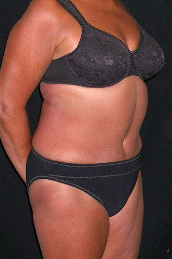 Tummy Tuck Gallery - Patient 23533814 - Image 8