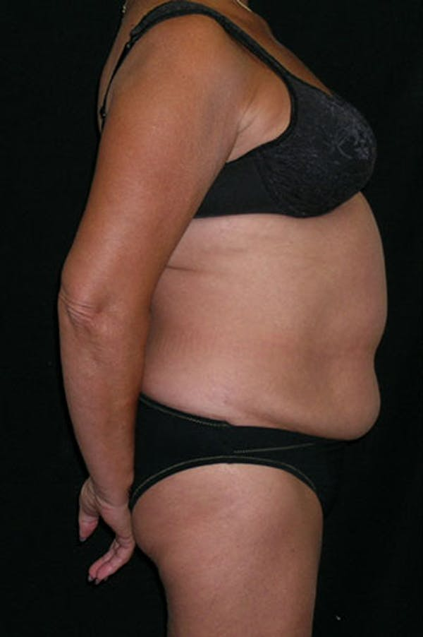 Tummy Tuck Gallery - Patient 23533814 - Image 9