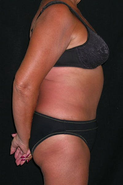 Tummy Tuck Gallery - Patient 23533814 - Image 10