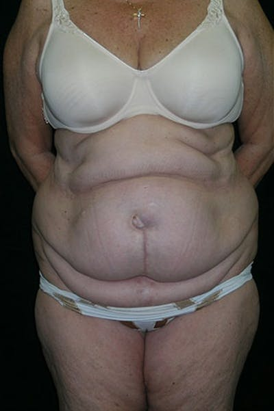 Tummy Tuck Gallery - Patient 23533816 - Image 1