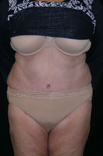 Tummy Tuck Gallery - Patient 23533816 - Image 2