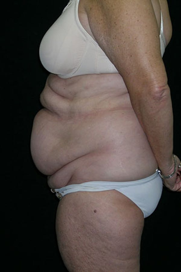 Tummy Tuck Gallery - Patient 23533816 - Image 3