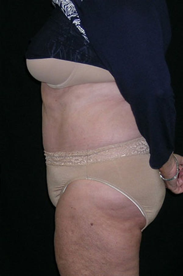 Tummy Tuck Gallery - Patient 23533816 - Image 4