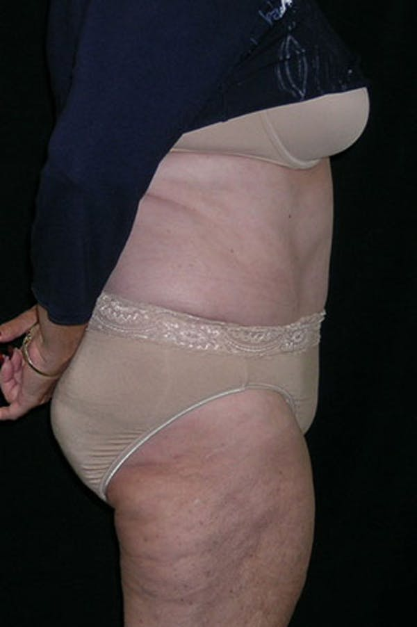 Tummy Tuck Gallery - Patient 23533816 - Image 6