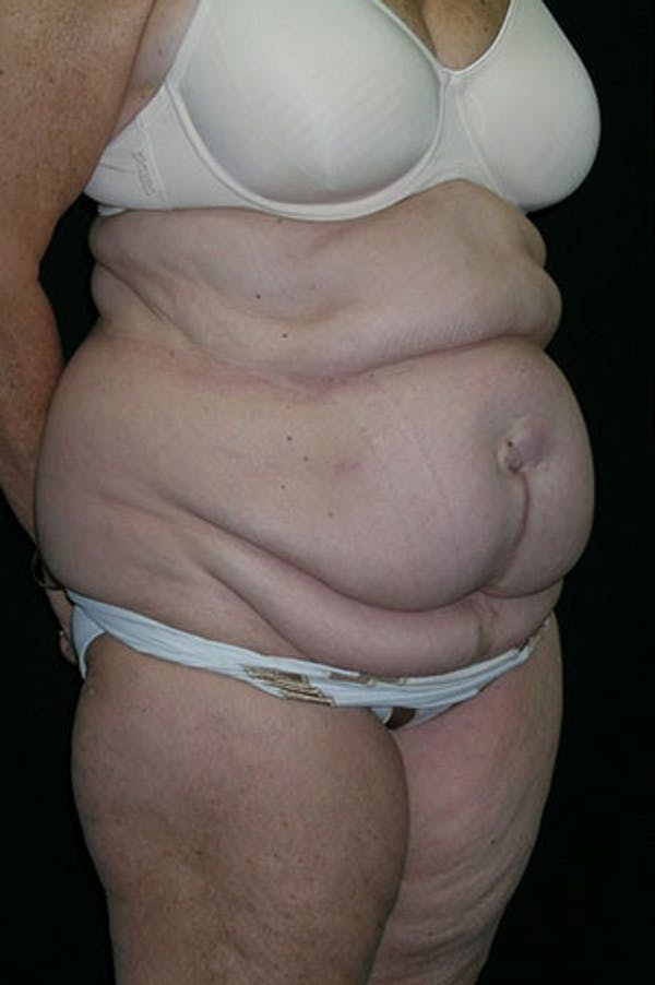 Tummy Tuck Gallery - Patient 23533816 - Image 7