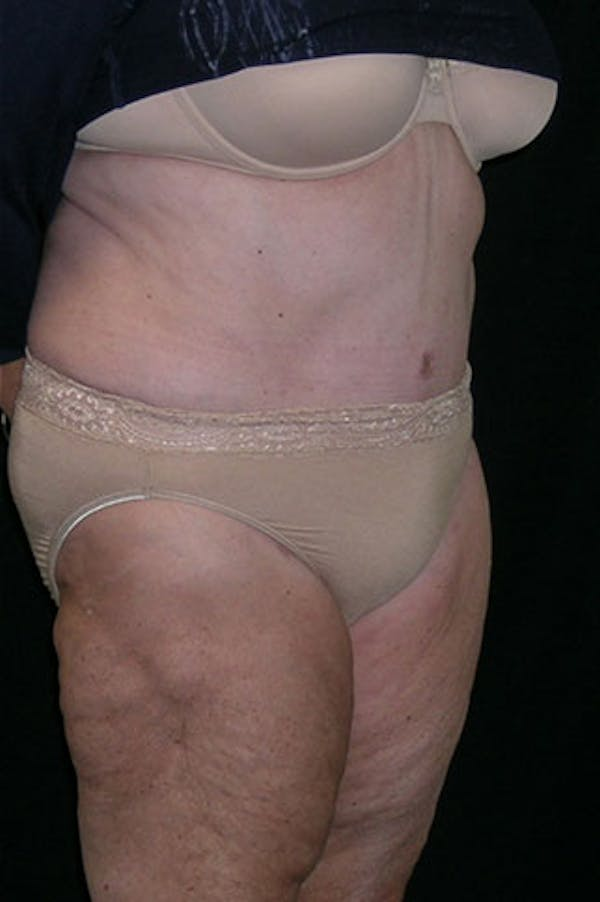 Tummy Tuck Gallery - Patient 23533816 - Image 8
