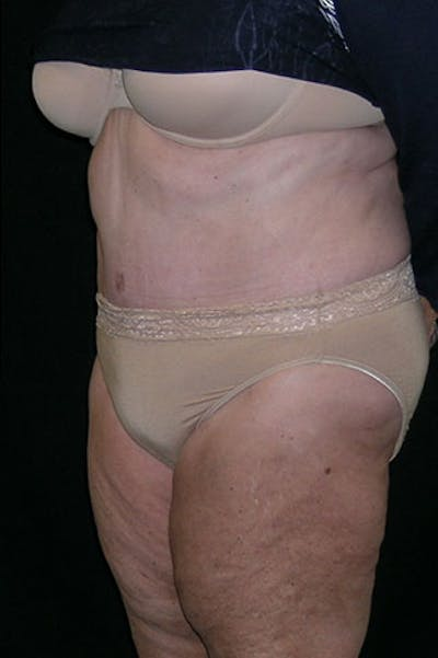 Tummy Tuck Gallery - Patient 23533816 - Image 10