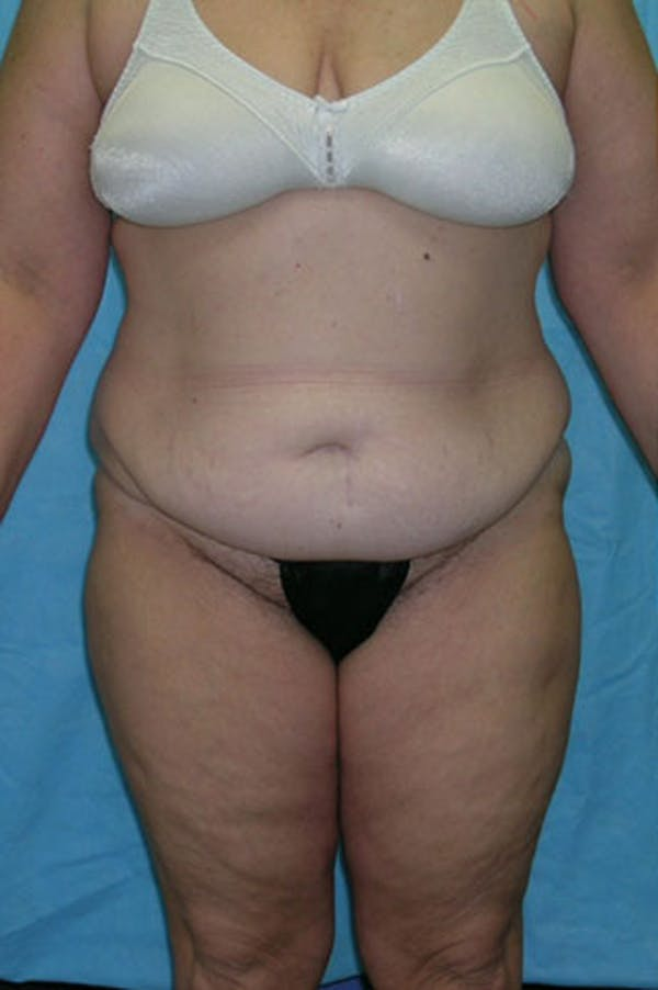 Tummy Tuck Gallery - Patient 23533844 - Image 1