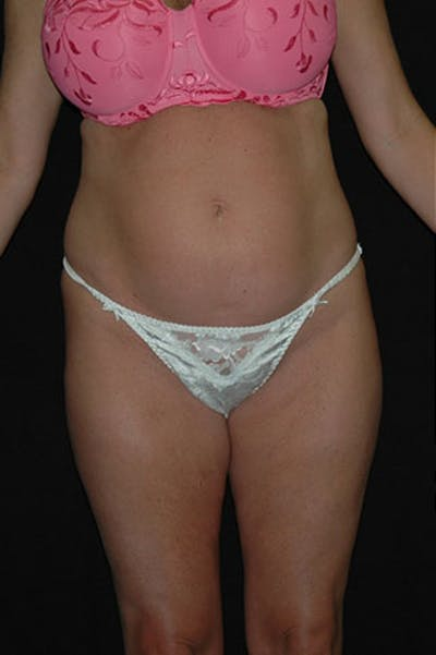 Tummy Tuck Gallery - Patient 23533845 - Image 1