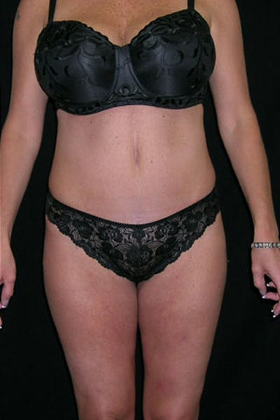 Tummy Tuck Gallery - Patient 23533845 - Image 2