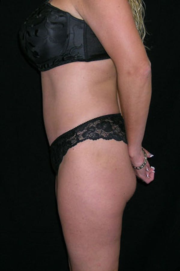 Tummy Tuck Gallery - Patient 23533845 - Image 4