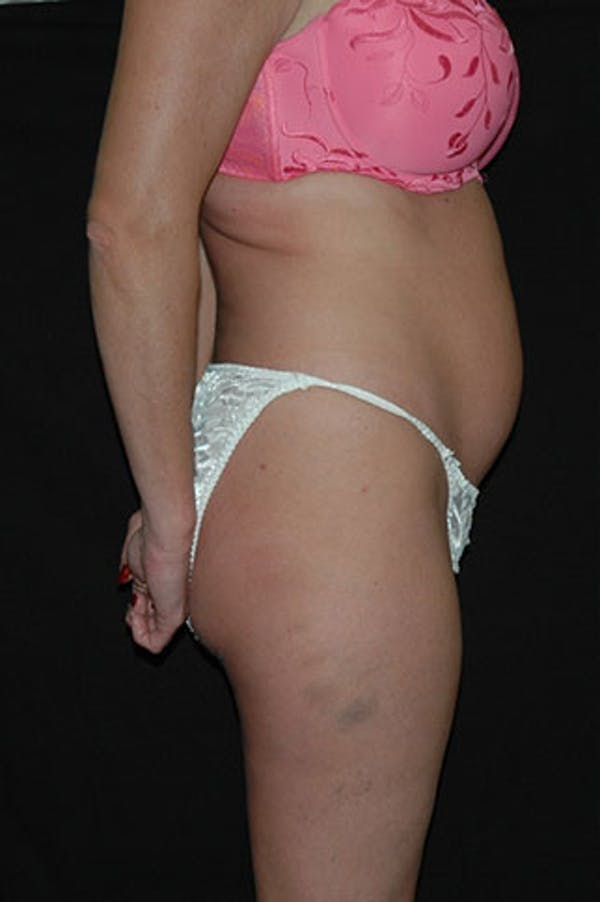 Tummy Tuck Gallery - Patient 23533845 - Image 5
