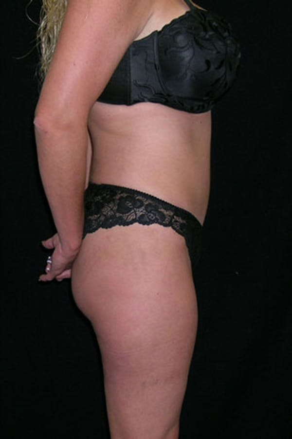 Tummy Tuck Gallery - Patient 23533845 - Image 6
