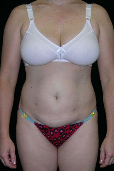 Tummy Tuck Gallery - Patient 23533847 - Image 1