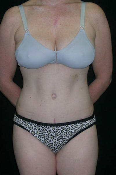 Tummy Tuck Gallery - Patient 23533847 - Image 2