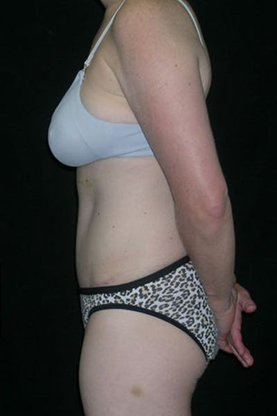 Tummy Tuck Gallery - Patient 23533847 - Image 6