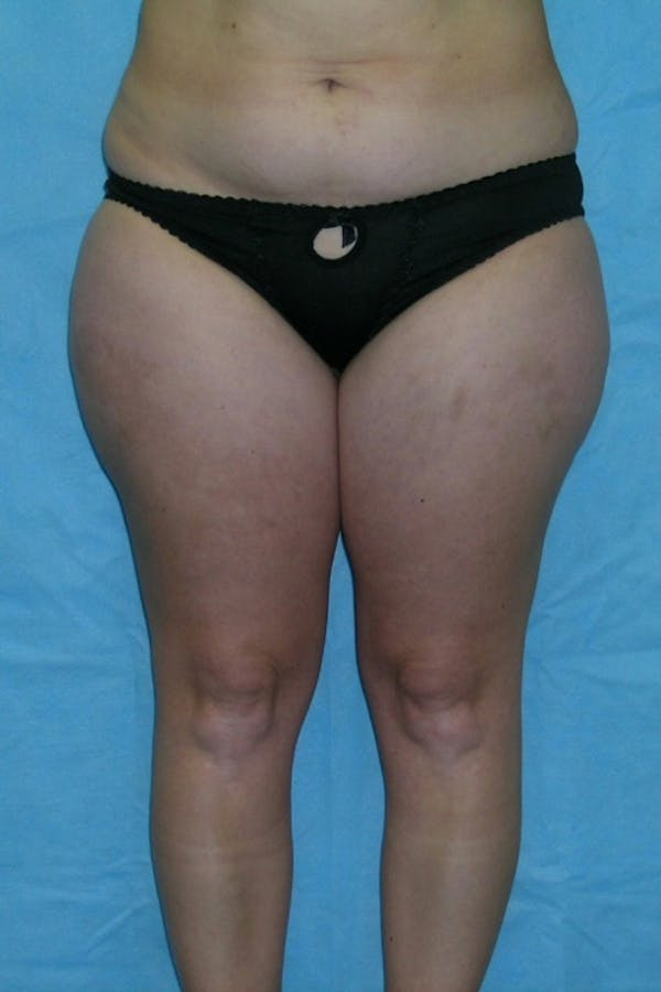 Liposuction & SmartLipo Gallery - Patient 23533848 - Image 1