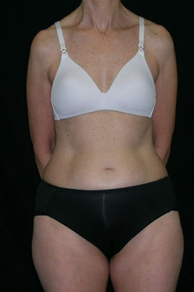 Tummy Tuck Gallery - Patient 23533850 - Image 1