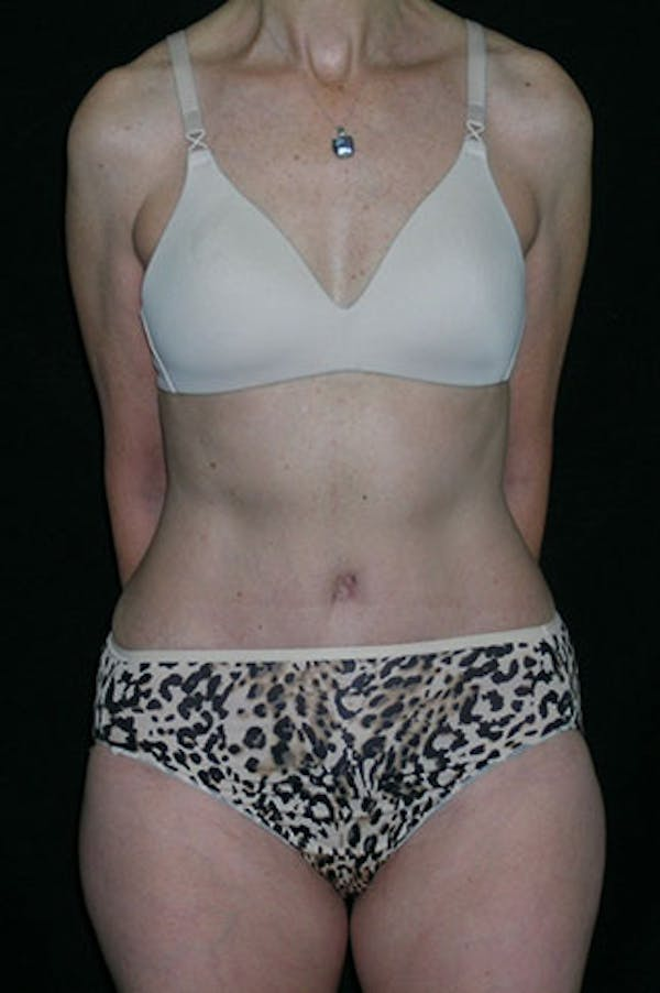 Tummy Tuck Gallery - Patient 23533850 - Image 2